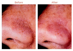 Diamond microdermabration