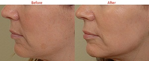 Hyperpigmentation treatment with IPL