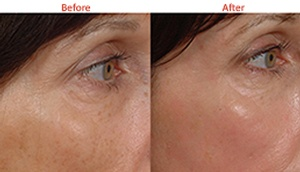 Hyperpigmentation and wrinkles removed